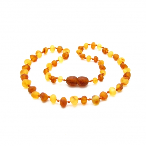 Baroque Amber Teething Necklace TNBaR008