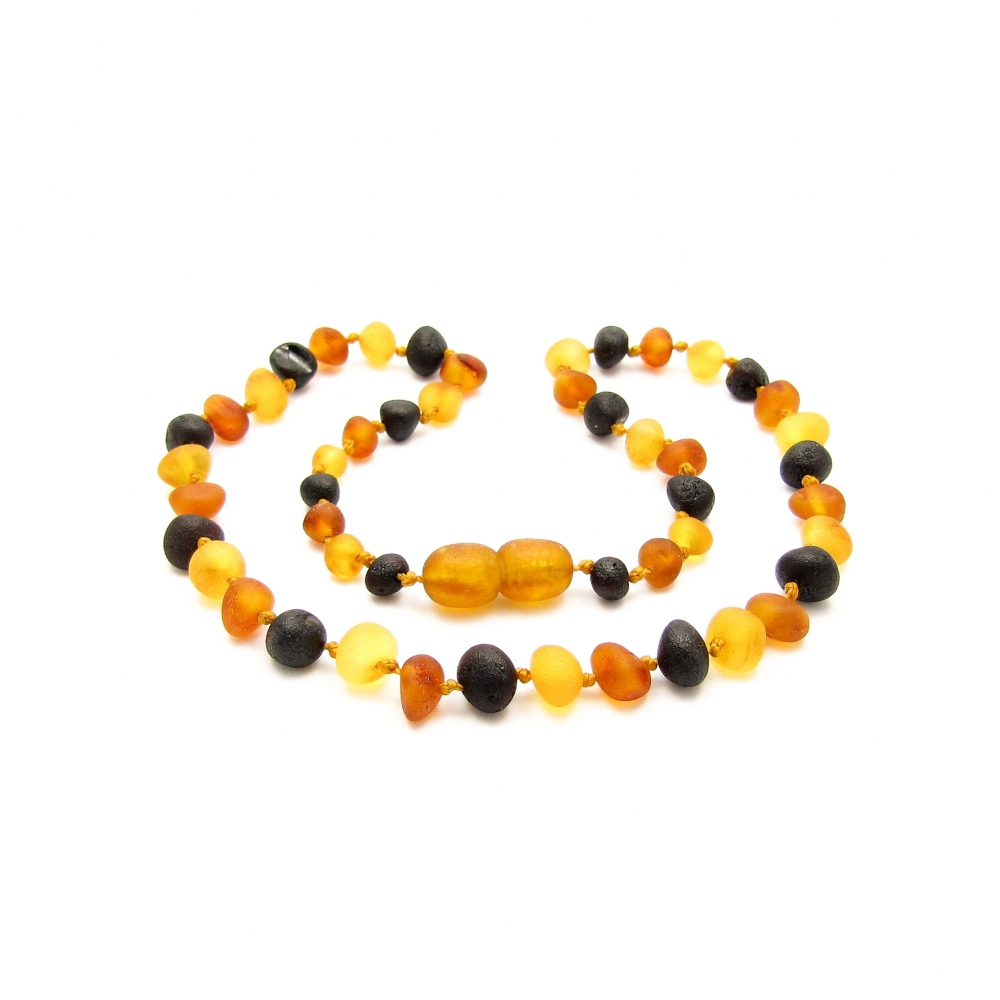 Baroque Teething Amber Necklace 280